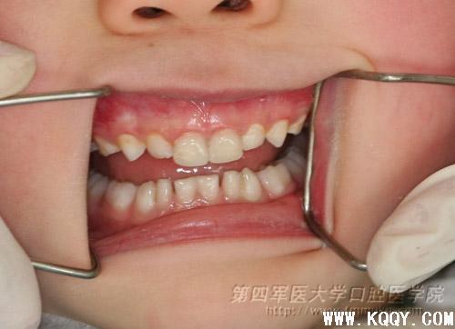 儿童口内-口腔前沿网