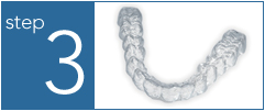 how is the invisalign made?