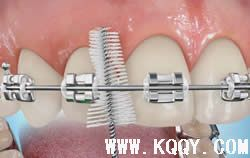 正畸护理七种兵器之五牙