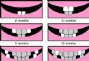 乳牙萌出时间及顺序