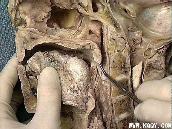 软腭实体解剖