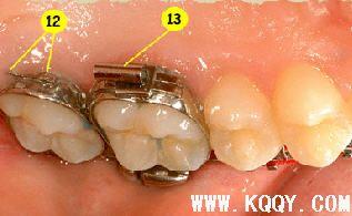 教你认识牙齿矫正器——固定矫治装置