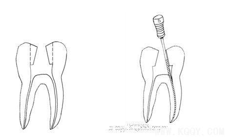 一,磨牙合面开髓的改良 重度磨损,牙周病及楔状缺损的患牙做去