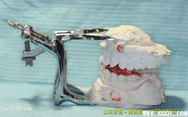 H?upl是一位牙周医师和组织学家,Andresen的功能保持器获得的疗效给他留下深刻的印象,引发了他探究由此引起的组织学变化的兴趣,他开始确信这种装置在自然力量传递到下颌骨、牙齿和周围组织从而刺激生长。他认为Roux的骨改建理论是一个有力的临床证据。由于该装置能激活肌肉的力量因此称之为肌激动器(Activator)。  肌激动器口内观