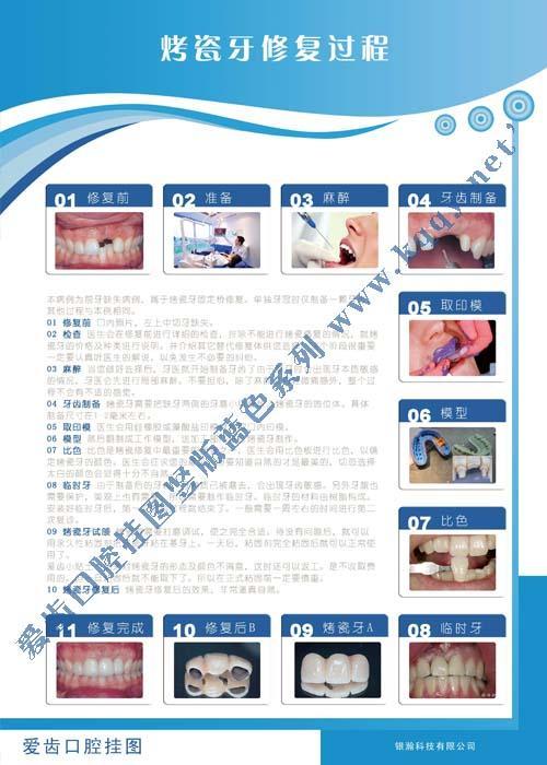 爱齿竖版蓝色口腔挂图――烤瓷牙制作过程