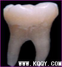 下颌第一磨牙解剖形态详解
