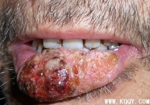 图解什么是唇癌