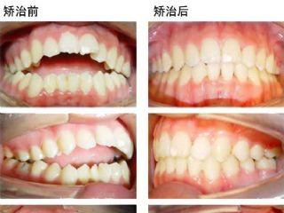 牙齿开合图片病例