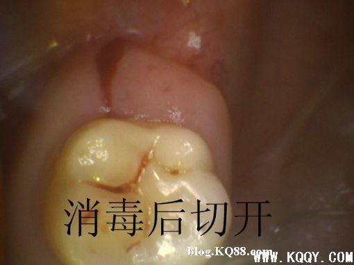 上颌高位阻生智齿的微创拔除过程图