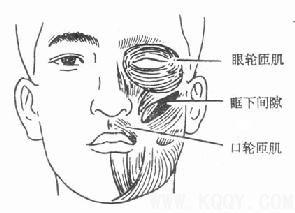颌周峰窝织炎——口腔颌面部炎症