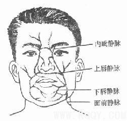 疖痛——口腔颌面感染四