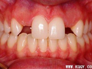 先天性缺牙病例图