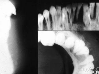 颌骨骨肉瘤影像学图片