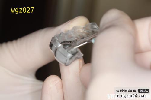 武广增舌侧隐形矫治:间接托槽粘接技术
