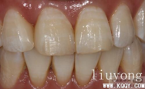 补的树脂牙齿能用多久