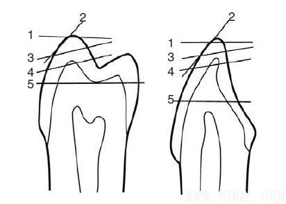 牙齿磨耗与年龄呈线性相关