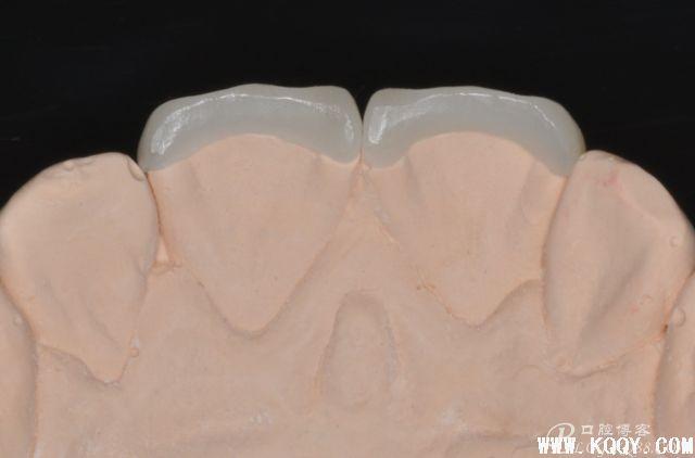 一堑一智——前牙贴面