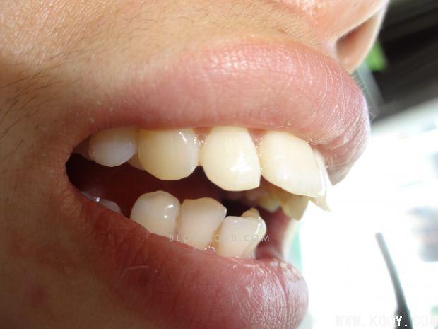 前牙氧化锆美学修复及详细步骤-固定修复-口腔前沿网