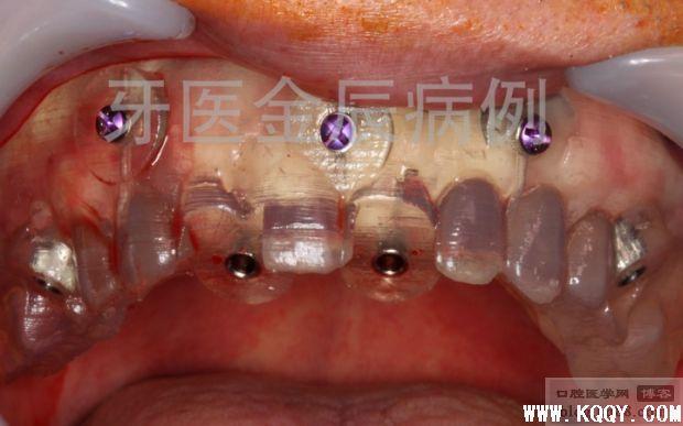 上颌手术导板全口种植,即刻负重 All-on-4