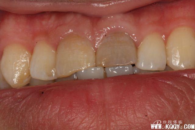 双侧上颌中切牙根尖屏障术+根管治疗