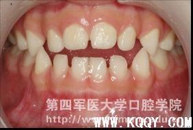 不良习惯导致乳牙列开合的咬合诱导治疗