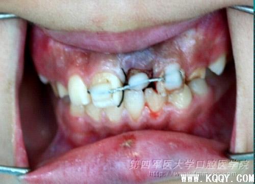 年轻恒中切牙根中1/3折断的拔出保存修复技术